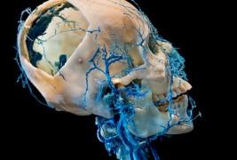Bodies and Skulls - thumbnail_4